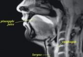 IRM vidéo