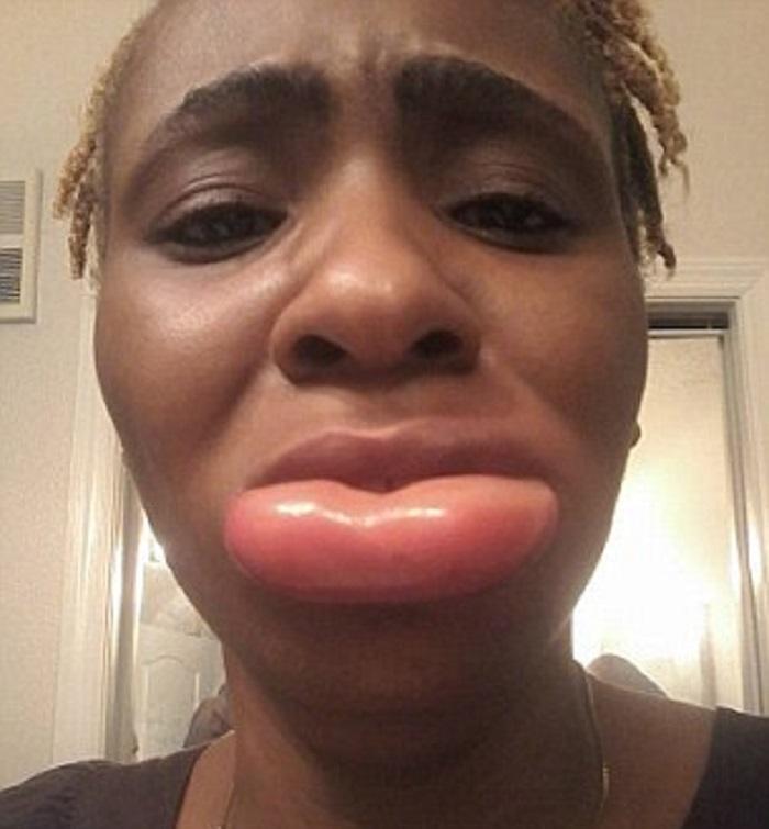 Sa lèvre triple de volume après avoir utilisé un rouge à lèvres (photos et vidéo)
