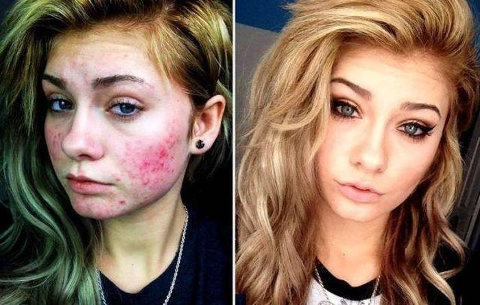 Problèmes de peau : quand le maquillage fait des merveilles (22 photos)